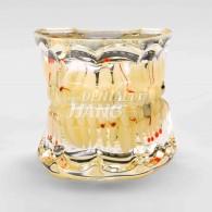 투명 덴티폼 Gold-III #HL-60019
