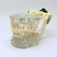 Transparent Model DM 102 #HL-60102