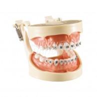 Orthodontic Model #HL-60024 (Hard)
