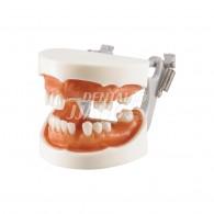 Implant Training A #HL-60041